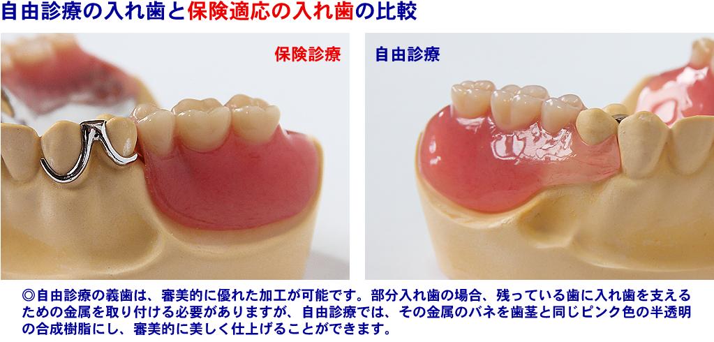 自由診療●金属床義歯は、レジンの多くの部分が金属のため、粘膜に接する部分が薄くぴったりと仕上がり、コンパクトな設計が可能となり、異物感の少ない入れ歯になります。