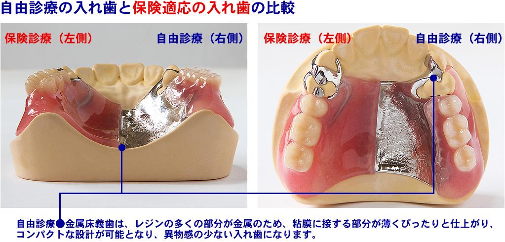 ◎自由診療の義歯は、審美的に優れた加工が可能です。部分入れ歯の場合、残っている歯に入れ歯を支えるための金属を取り付ける必要がありますが、自由診療では、その金属のバネを歯茎と同じピンク色の半透明の合成樹脂にし、審美的に美しく仕上げることができます。ç
